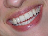 FEATURE: Should you get veneers for that perfect smile?
