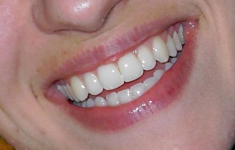 dental veneers - feature