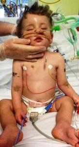 Aydan Oakes in hospital