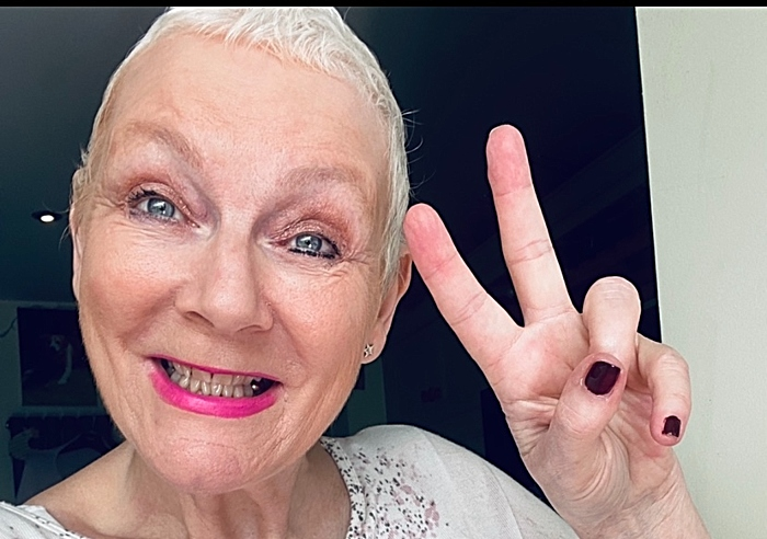 Kim Smith after her cancer treatment