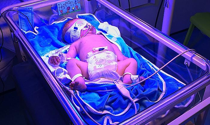 Perran a few days old in hospital